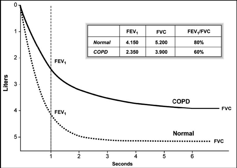 ecg and lung air flow relationship