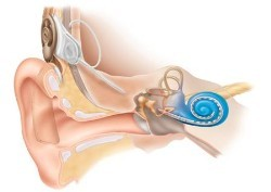 Cochlear Implant - HSE ie